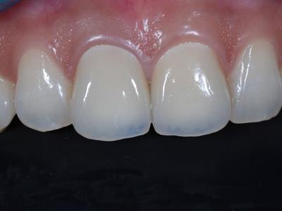 牙龈外露修复