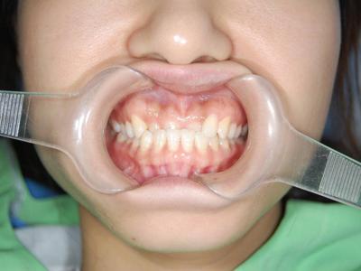 牙颌畸形矫治
