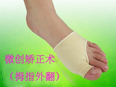 微创大脚骨治疗