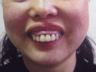 口唇牙颌部整形