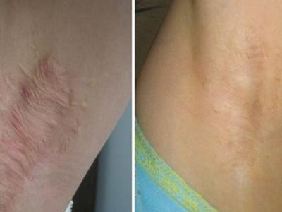 颈部瘢痕挛缩的治疗