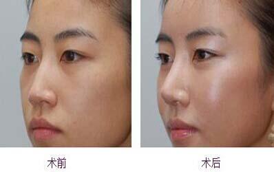 不良隆鼻修复