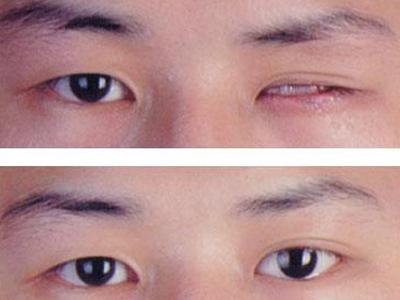羟基磷灰石义眼台眶内置入