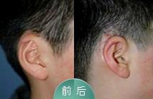 耳轮缺损修复