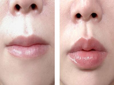 唇珠唇峰整形