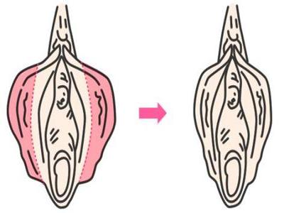 阴蒂肥大成形