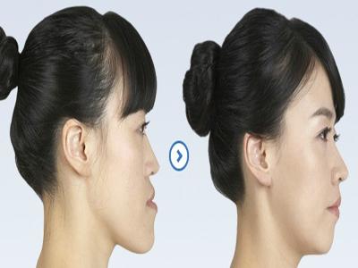 小颌畸形整形