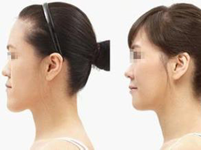 偏颌畸形修复
