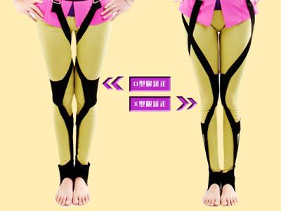 """矫正""""O型腿""""和""""八字腿""""修复"""
