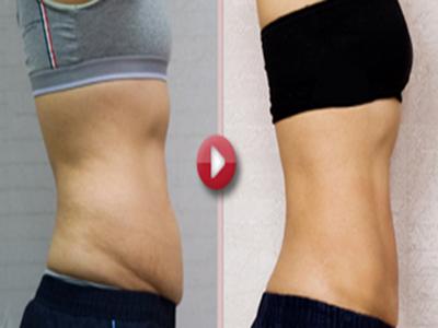 腹壁松弛需腹壁整形