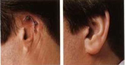 耳廓较大缺损修复