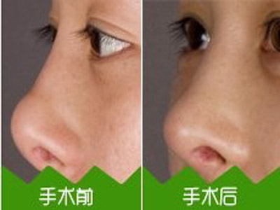 闭式鼻整形