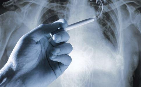 图片大全:老年人肺癌[2]