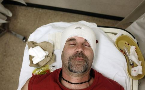 头外伤 急救 处理 伤情 出血 手术