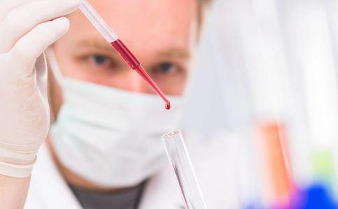 精液 生育 糖尿病 检查 生育 精子