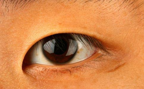 青光眼 用药 致盲 建议 皮质类固醇眼液 散瞳药