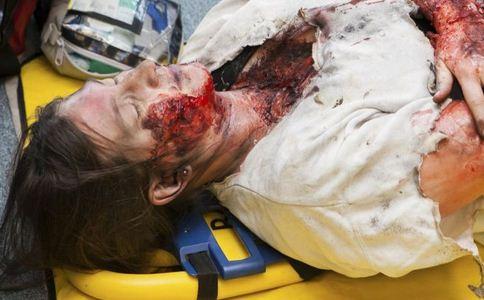 头面部淤血怎么办 头面部淤血急救 外科急救