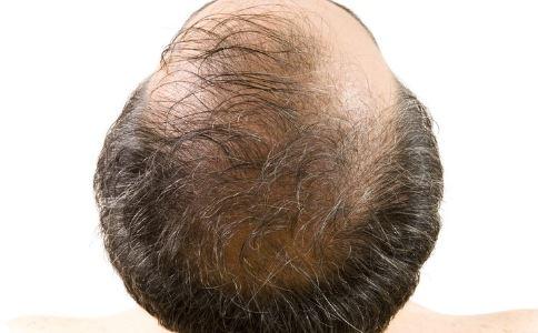 脱发 男性保健 保健 防脱发 秃顶 预防