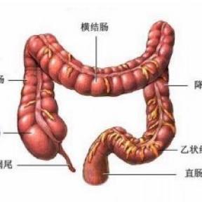 大肠癌与久坐的关系