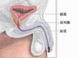 前列腺增生早期有什么症状
