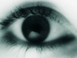 青光眼是由什么原因引起的?