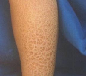 常见的4种鱼鳞病类型