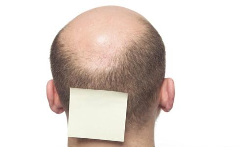 如何治疗脱发 脱发治疗 秃头怎么办
