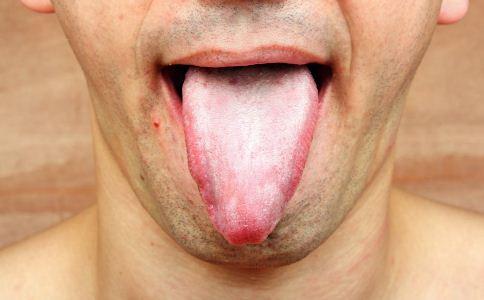 艾滋病初期症状图片 艾滋病症状图片 艾滋病口腔溃疡图片