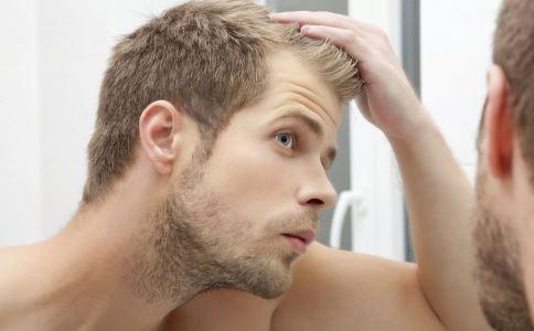 脱发怎么办 如何预防脱发 预防脱发吃什么好