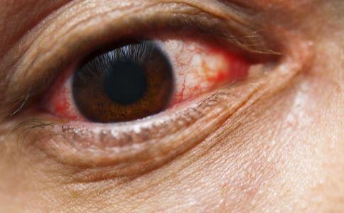 眼睛充血是怎么回事?_专家访谈_眼科_99健康