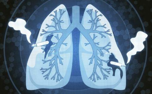 什么是肺癌 肺癌的简介 肺癌是什么