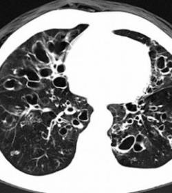 支原体感染的症状_支气管扩张能治愈吗__99健康网