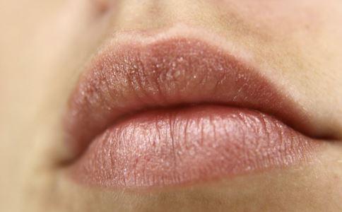 嘴唇起泡是什么原因 嘴唇起泡原因 嘴唇起泡怎么办