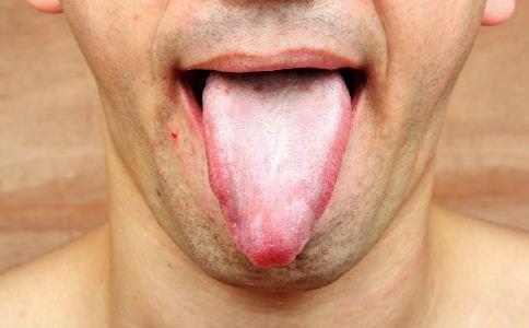 艾滋病潜伏期口腔病变症状 艾滋病什么时候会出现口腔白色念珠菌图片