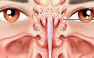 治疗鼻窦炎试试这三招_鼻病治疗_耳鼻喉_99健康网