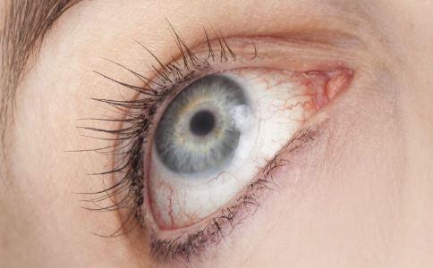 葡萄膜炎症状 葡萄膜炎治疗方法 葡萄膜炎是什么