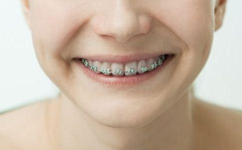 自锁牙套和普通牙套_透明托槽牙套效果图片-牙套托槽掉了,隐形透明无托槽牙套,透明 ...