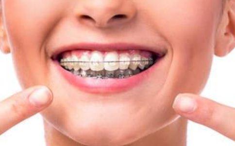钢牙套图片 牙齿矫正图片 牙套图片