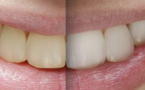 二氧化锆全瓷牙图片 二氧化锆全瓷牙 全瓷牙图片