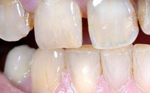 牙龈萎缩症状图片 牙龈萎缩症状 牙龈萎缩图片