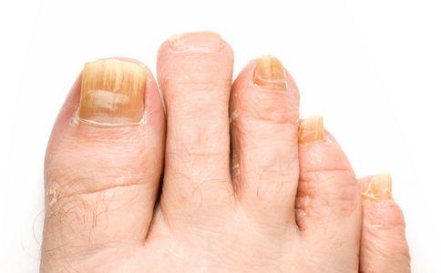 看指甲知健康 从指甲颜色看疾病征兆