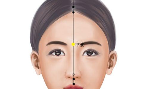印堂穴位置图 印堂穴位的准确位置图 印堂穴位置