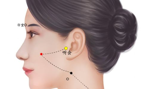 听会穴位的准确位置图 听会穴的准确位置图 听会穴位置图