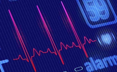 动态心电图 动态心电图 体检 动态心电图检查