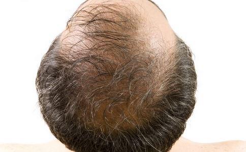 如何治疗脂溢性脱发 治疗脂溢性脱发方法有哪些 中医治疗脂溢性脱发有什么方法