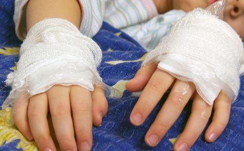 家庭急救常识 有哪些家庭急救常识 家庭急救常识有哪些