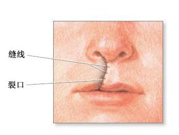 唇腭裂 唇腭裂最佳手术时间 唇腭裂手术费用
