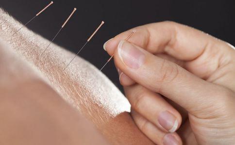 经期能针灸吗 经期可以针灸吗 针灸注意事项