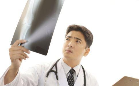 哪些人需要拍胸片 预防肺癌的方法 如何预防肺癌