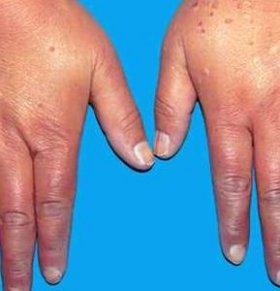 类风湿性关节炎的诱因 类风湿性关节炎的病因 关节炎